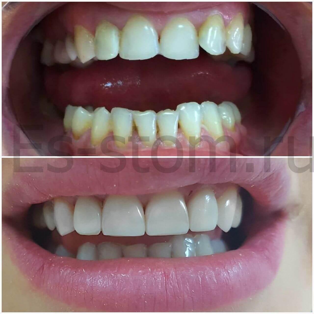 виниры на металлокерамические зубы