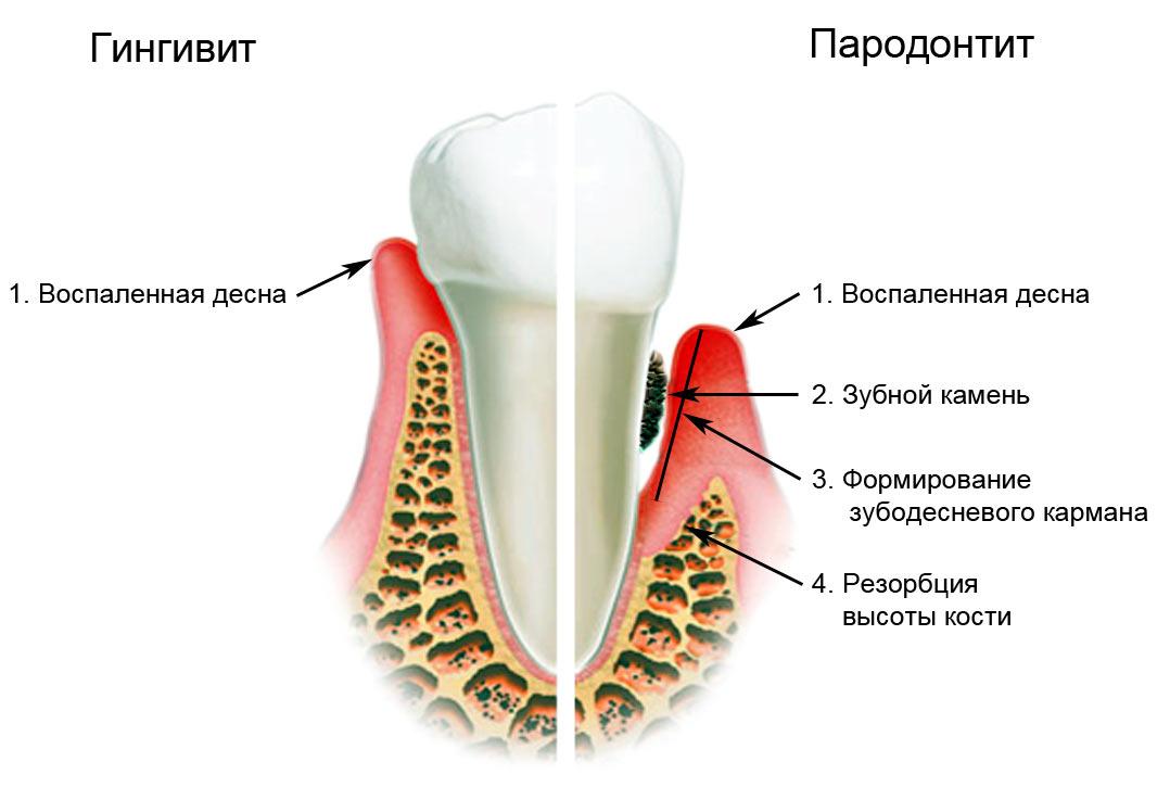 Лечение дёсен при гингивите