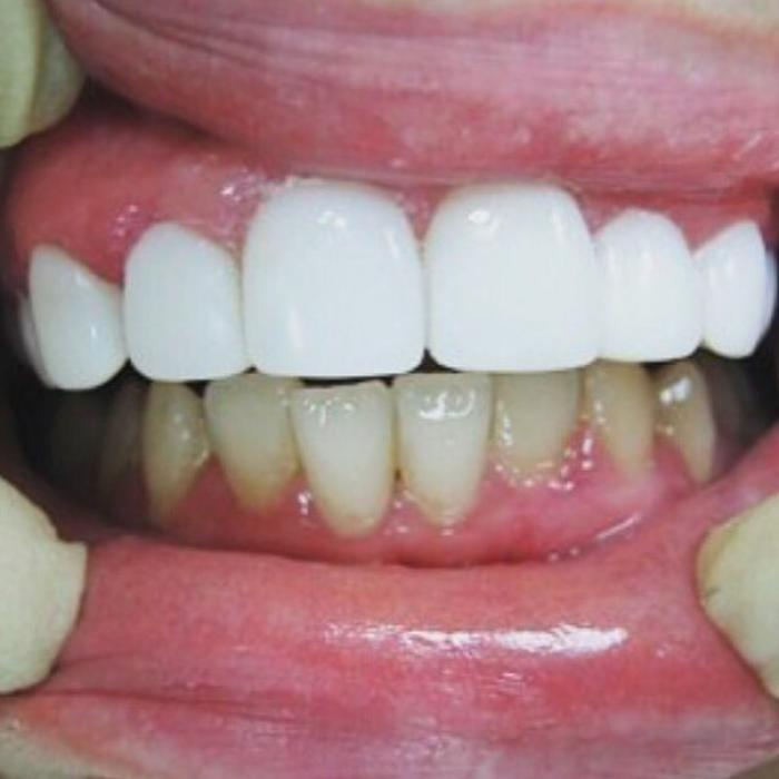Ноу-хау косметической стоматологии: виниры